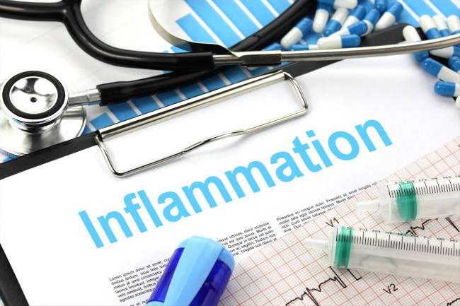 Inflammation creative commons