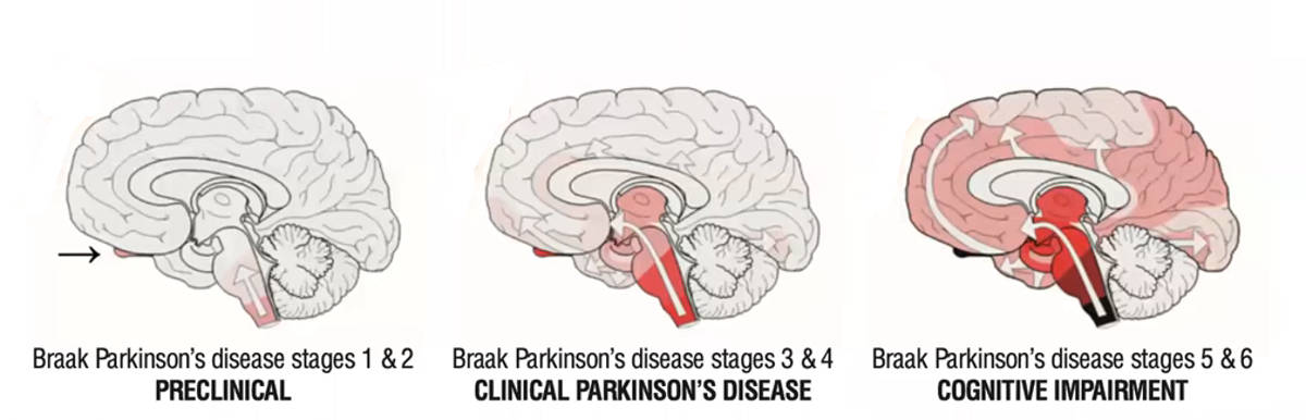 Parkinsons stages